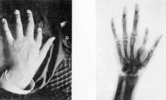 "1896 plaque published in ""Nouvelle Iconographie de la Salpetrière"", a medical journal. In the left a hand deformity, in the right same hand seen using radiography."